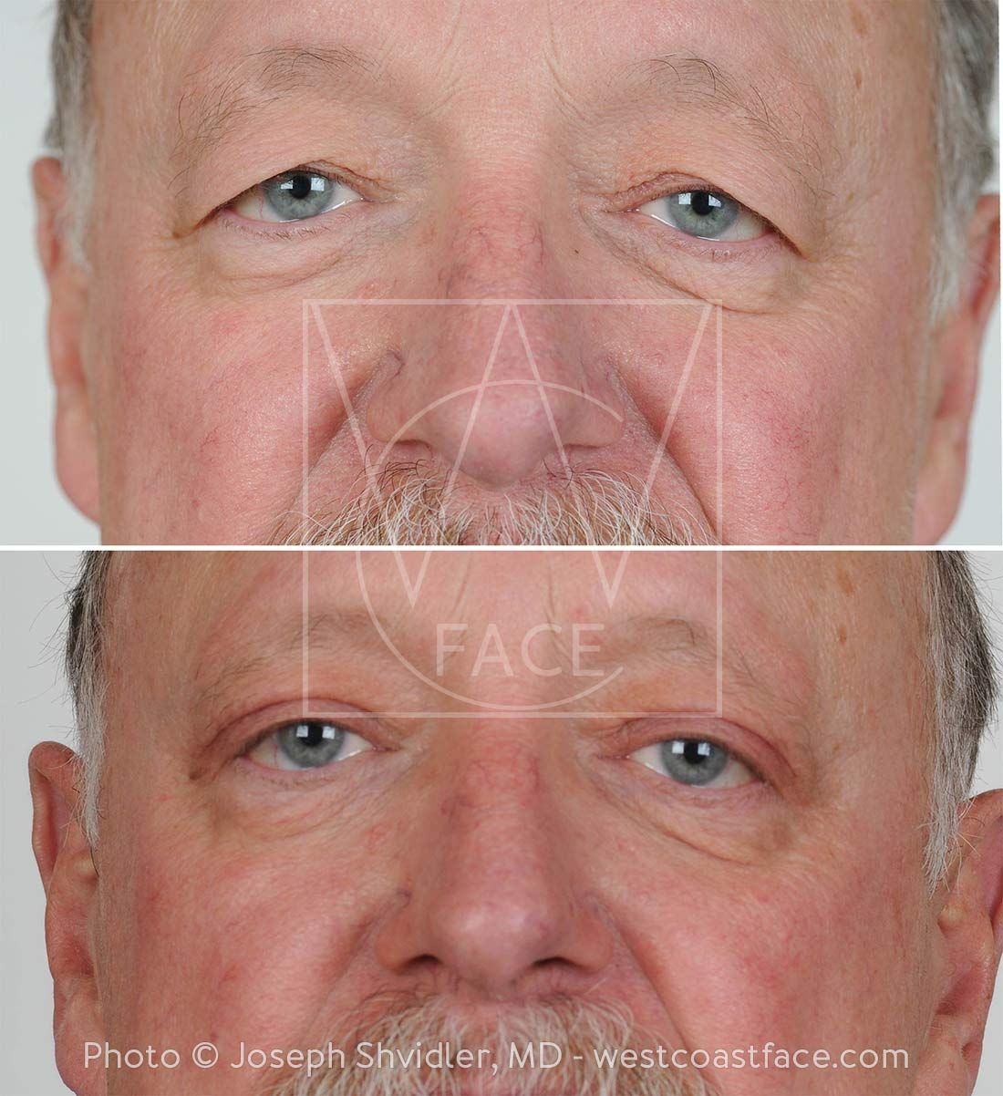 Eyelid Surgery for Men in Tacoma