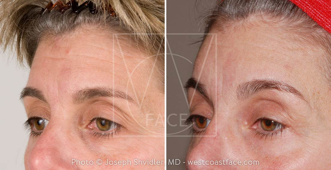 Tacoma Brow Lift Surgery