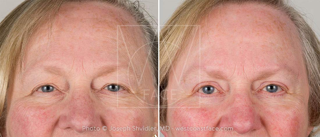 Eyelid Lift - Before After