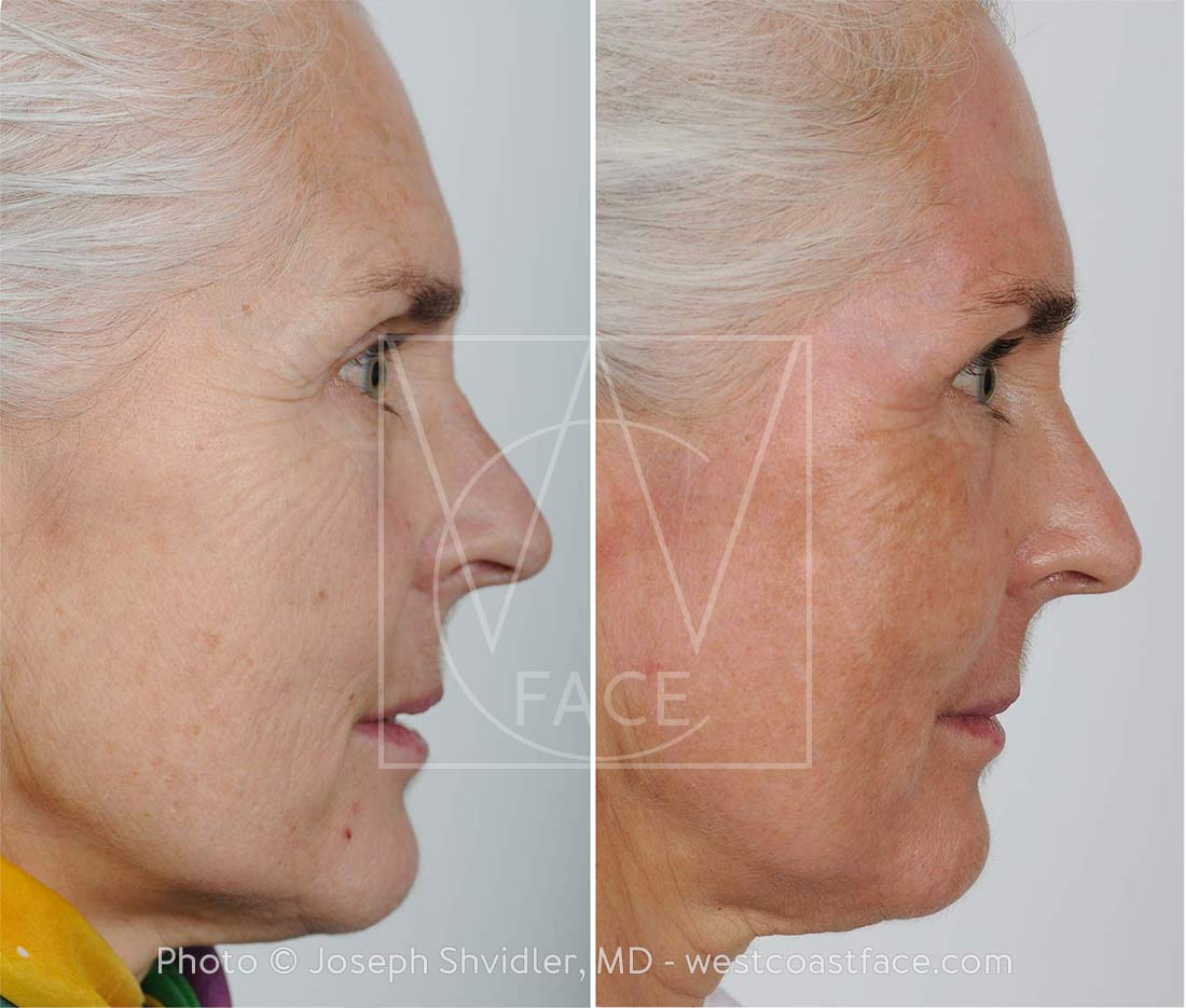 Laser Resurfacing Gig Harbor