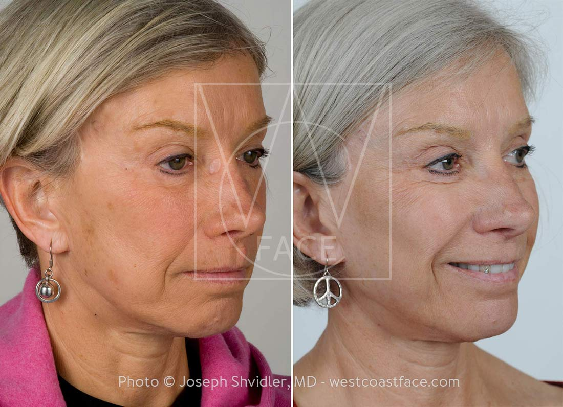 laser resurfacing tacoma