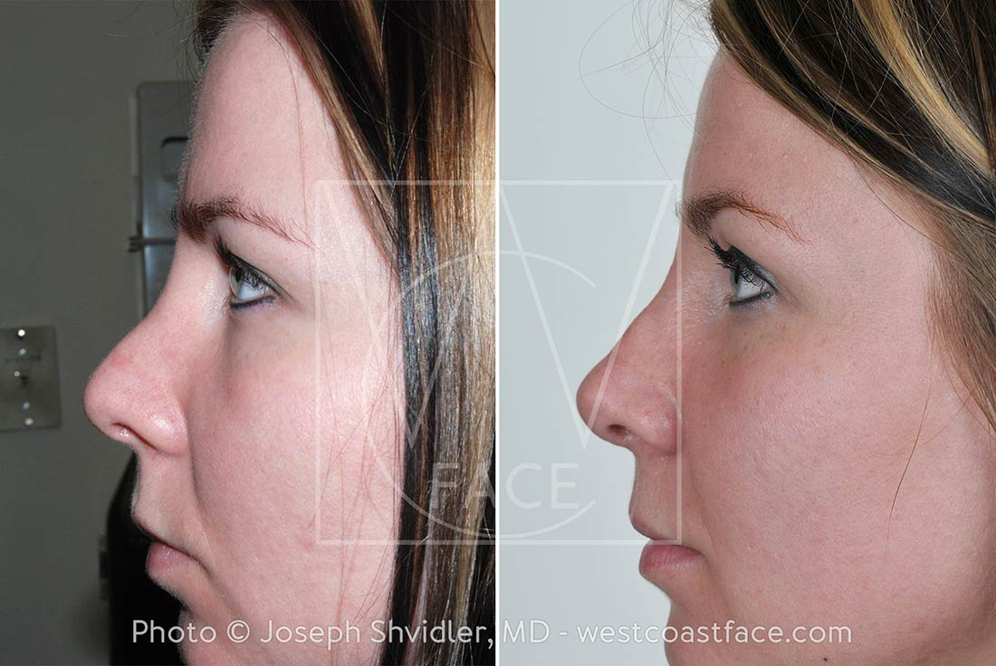 Gig Harbor Rhinoplasty